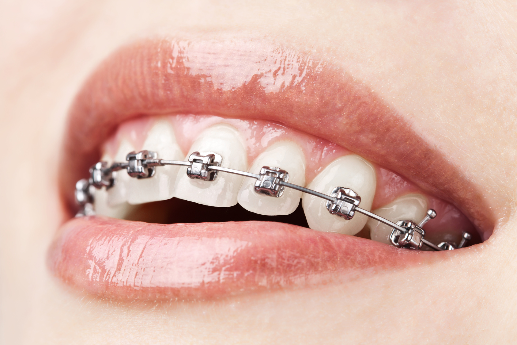 Orthodontics.jpg